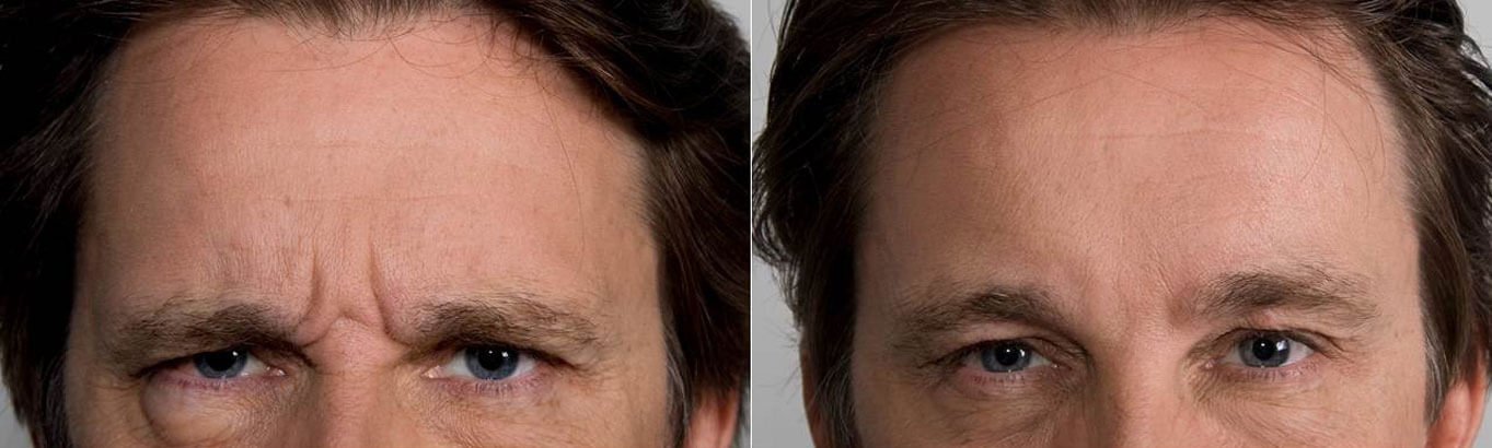 Male Anti-Wrinkle injections